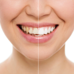 Houston Teeth Whitening