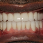 full mouth rehab dentist houston
