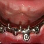 bar overdenture bar closeup - 2