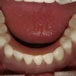 bar overdenture bar denture