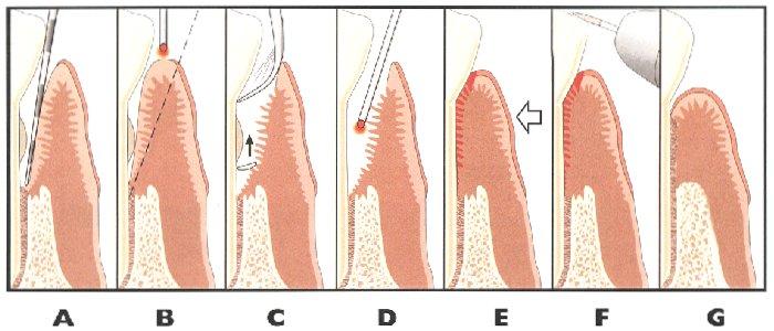 Houston Laser Periodontal Therapy