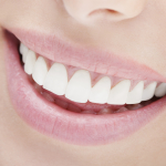 Cosmetic Dentistry in Houston
