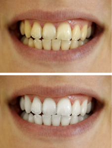 teeth whitening in houston
