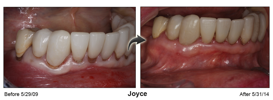 Before and After Gum recession treatment in Houston, TX