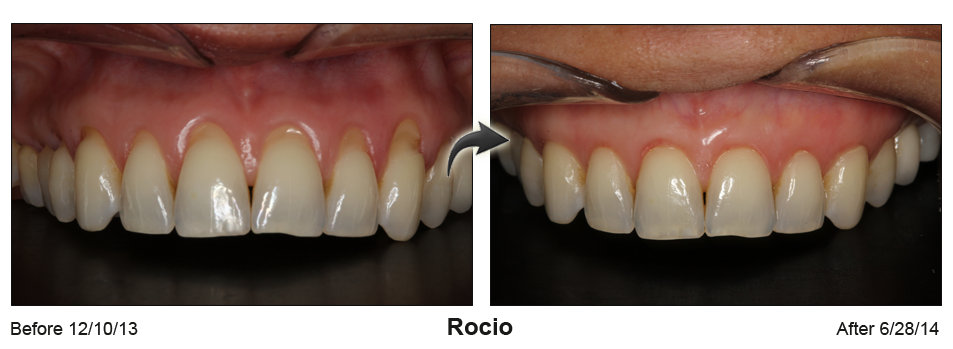 Gum recession treatment in Houston, TX