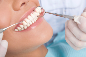 Dental Implants in Houston