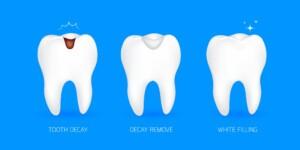 Dental Filling in houston