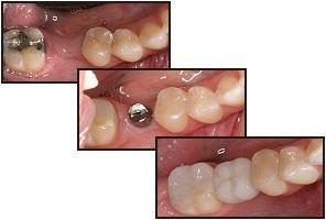implant_trio