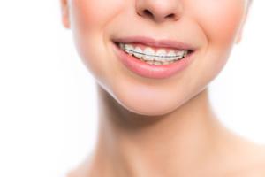 orthodontist in houston