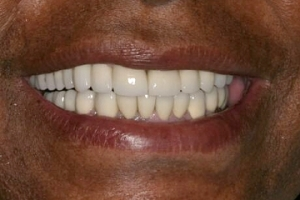 implant-smile-after