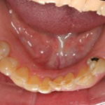 implant2b
