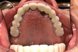 implant2f