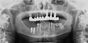 implant6b