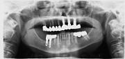 implant7b