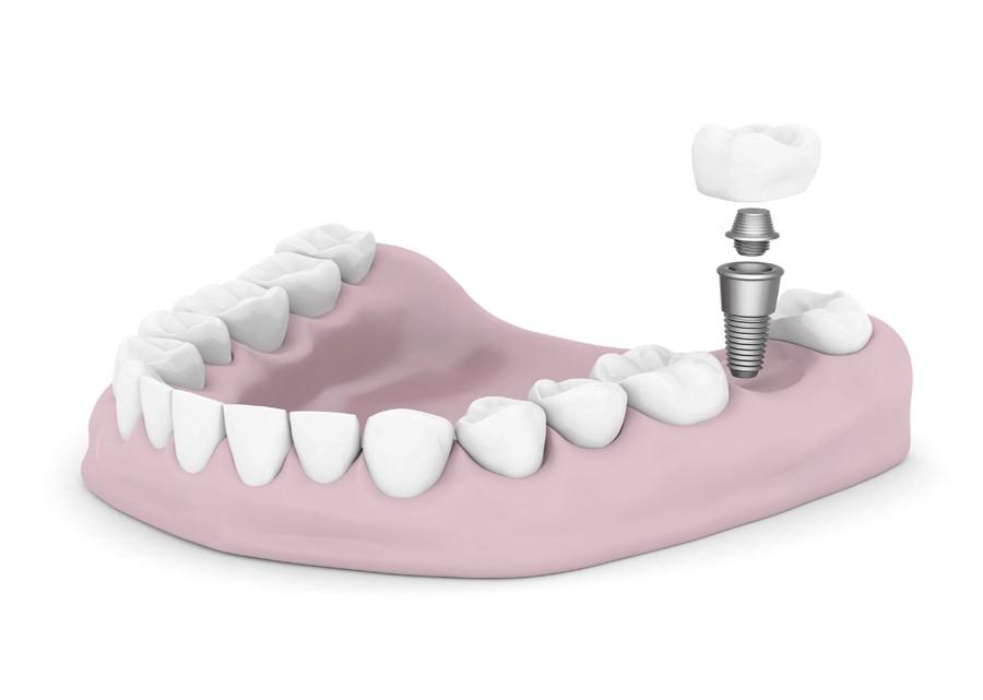 diagram of a dental implant