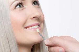check veneer of tooth crown