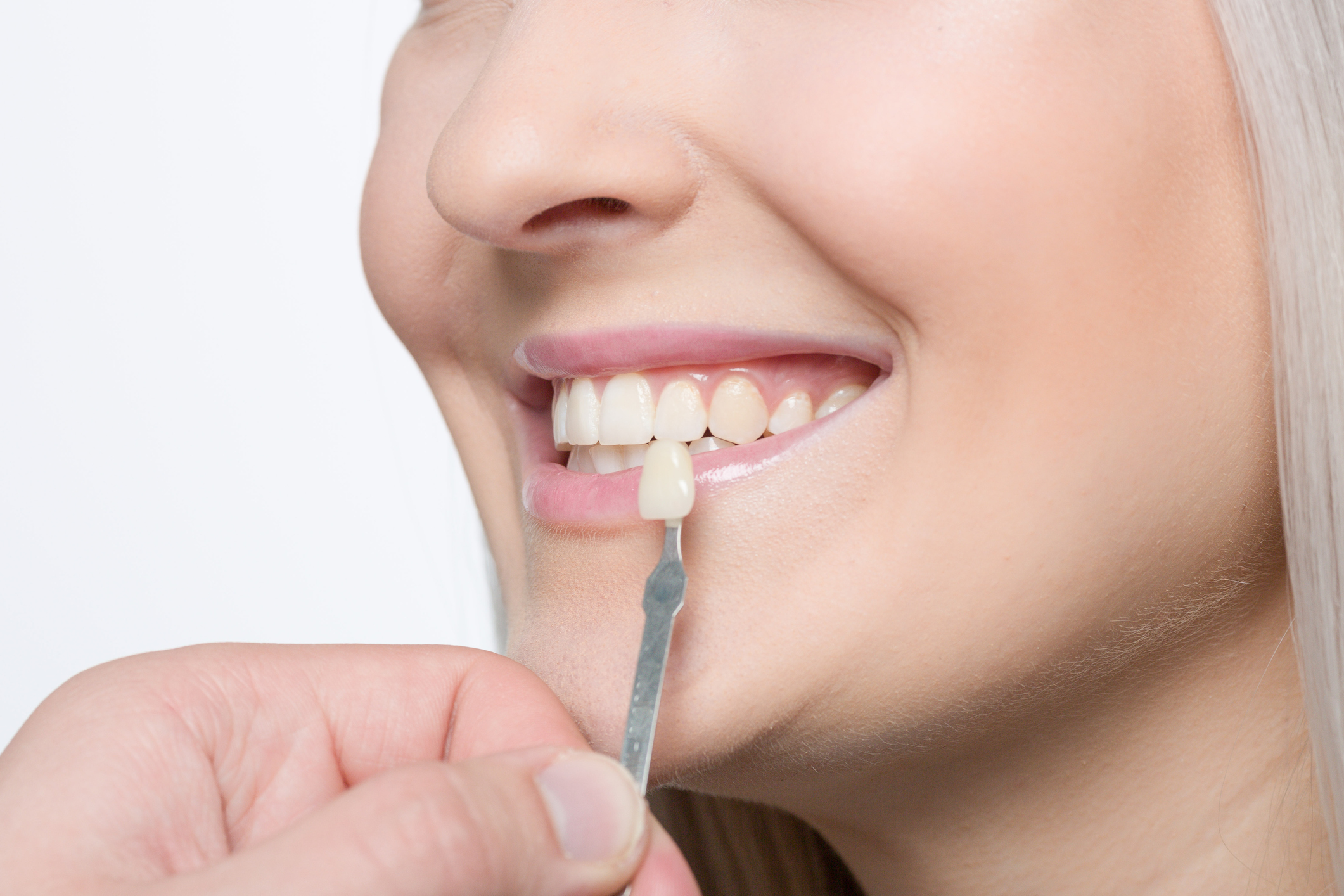 Using shade guide at woman's mouth to check veneer of tooth crown