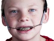 headgear-braces-ingenious-dentistry-group