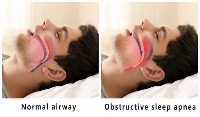 Sleep-Apnea-Causes_Ingenious-Dentistry