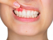 Gum-Disease-Health-Issues_Ingeniour-Dentistry-Houston