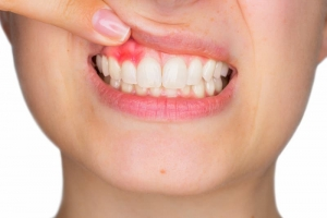 Gum-Disease-Health-Issues_Ingeniour-Dentistry-Houston