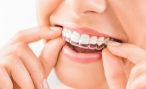 Invisalign-braces_Ingenious-Dentistry-Houston