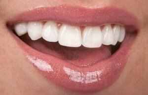 dental-makeover_Ingenious-Dentistry-Houston-TX
