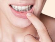 adult-braces-houston-tx