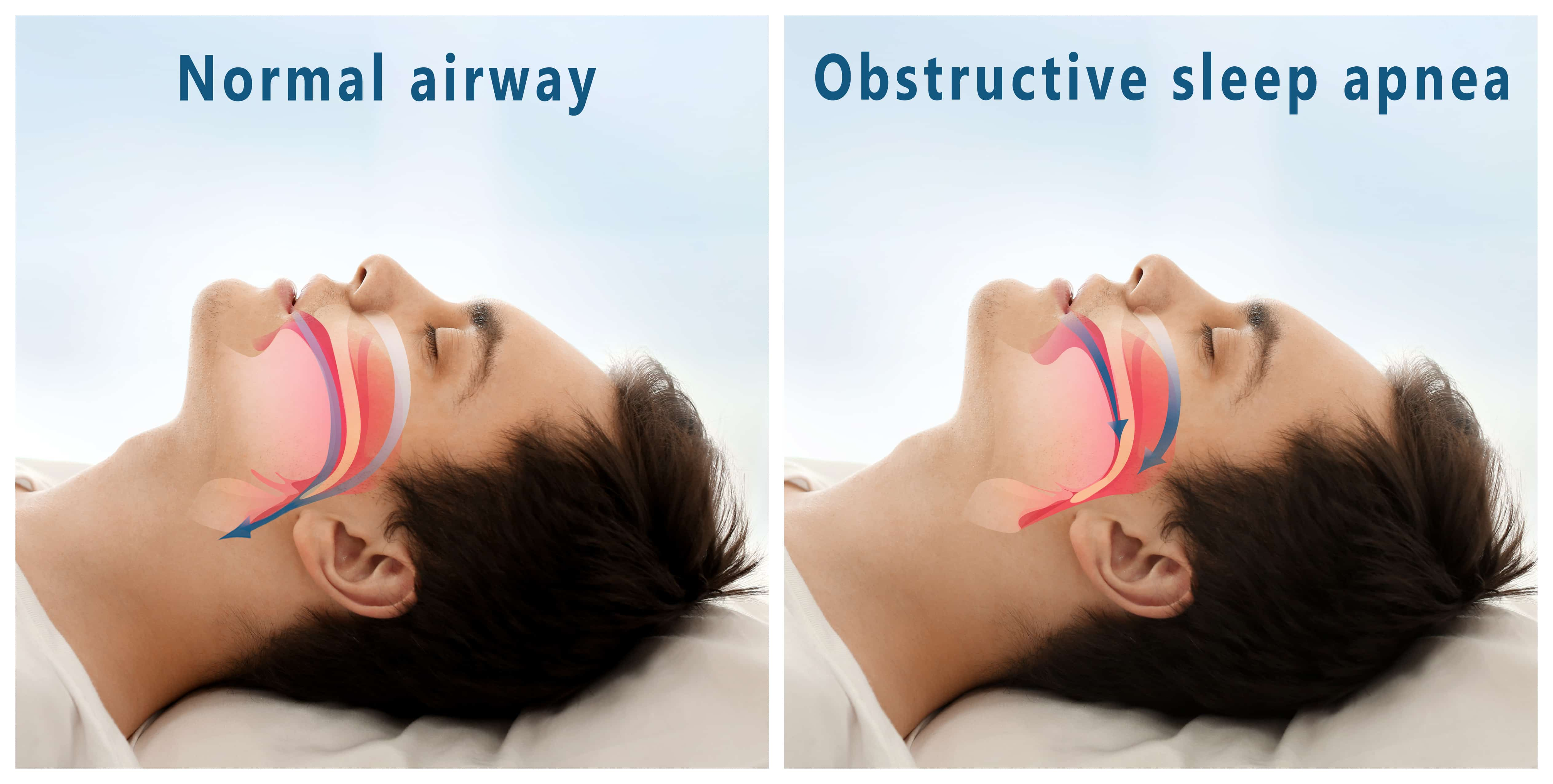 Airway Management with Vivos Treatment in Houston, TX | Ingenious Dentistry
